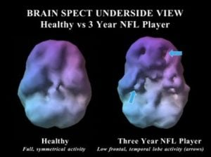 brain-of-nfl